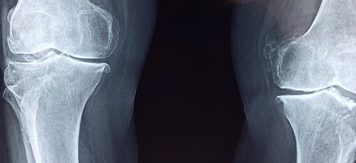 rentgen kolana